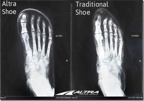 your-feet-in-wide-vs-narrow-shoes-great-visual-from-altra-running-2